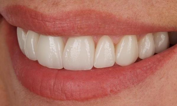 Upper-Teeth-Veneers-and-Single-Tooth-Implant-Crown-After-Image