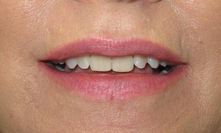 Smile-Makeover-Before-Image