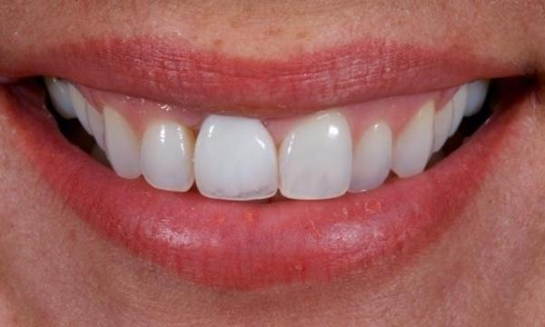 Upper-Teeth-Veneers-and-Single-Tooth-Implant-Crown-Before-Image